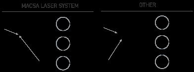 your-laser-precision-laser-system-image